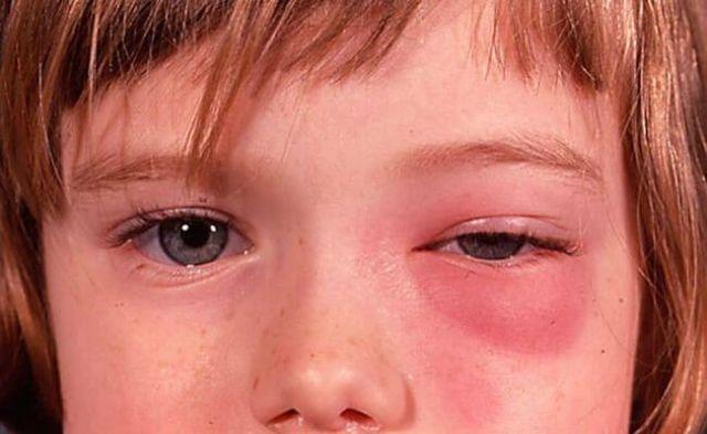 Этмоидит: причины, симптомы и лечение у взрослых