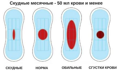 Симптомы первых месячных у девочек | o.b.