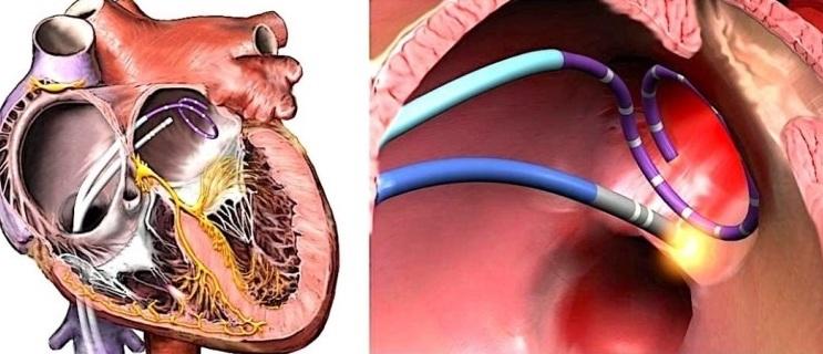 Абляция сердца: подготовка к процедуре, показания и противопоказания, возможные осложнения — заболевания сердца