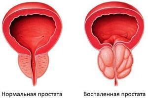 Предстательная железа — что это такое: основные функции предстательной железы