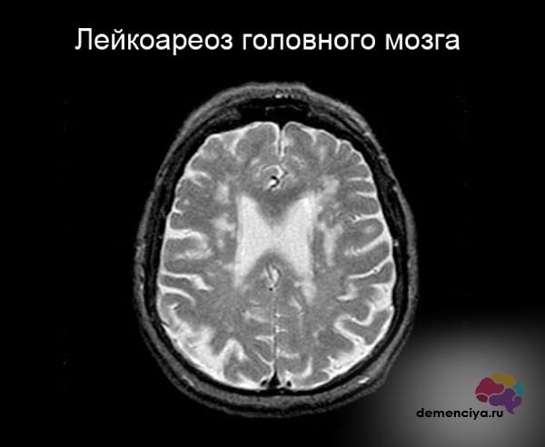 Что такое лейкоареоз головного мозга: причины, диагностика, лечение
