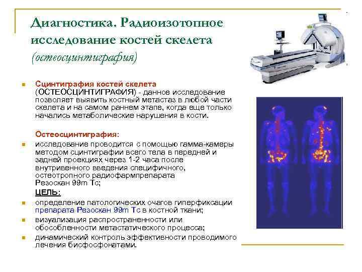 Как интерпретировать результаты сцинтиграфии скелета