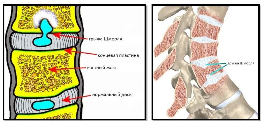 Грыжа шморля: что это такое и как лечить дефекты в телах позвонков