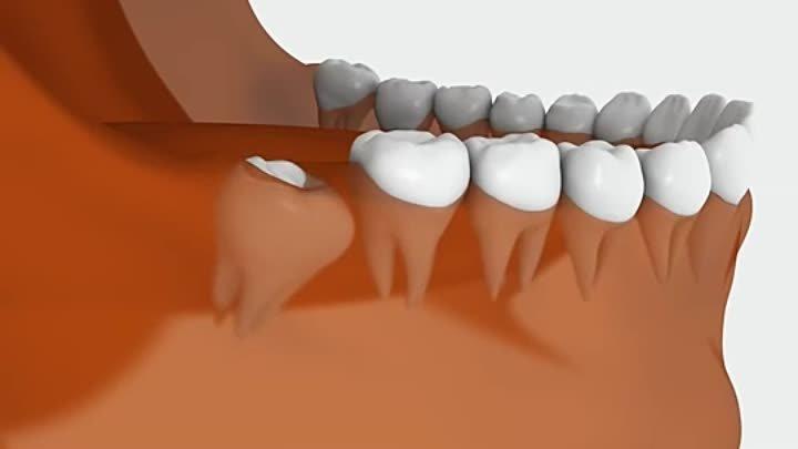 Как и когда растут зубы мудрости, и какие при этом могут быть осложнения
