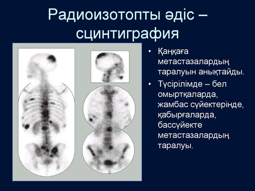 Сцинтиграфия костей скелета (остеосцинтиграфия)
