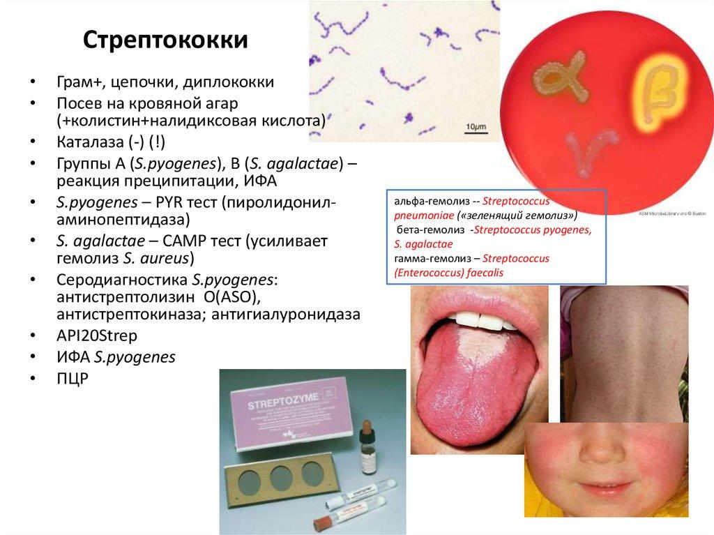 Стрептококковая инфекция: болезней много — микроб один