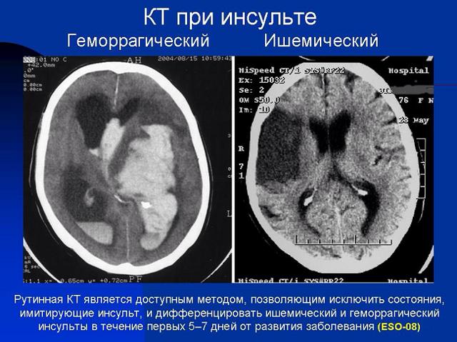 Чем отличается инсульт от инфаркта головного мозга: основные признаки и различия