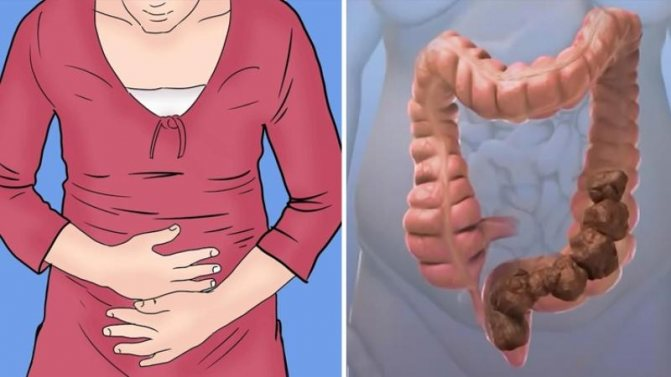 Атонические и спастические запоры: симптомы и лечение недугов