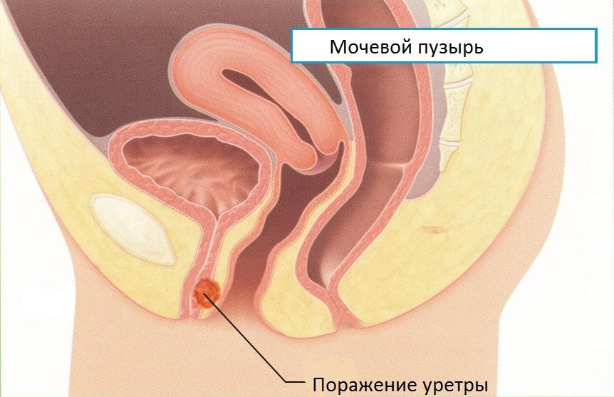 Киста парауретральная: причины, симптомы, операция, последствия