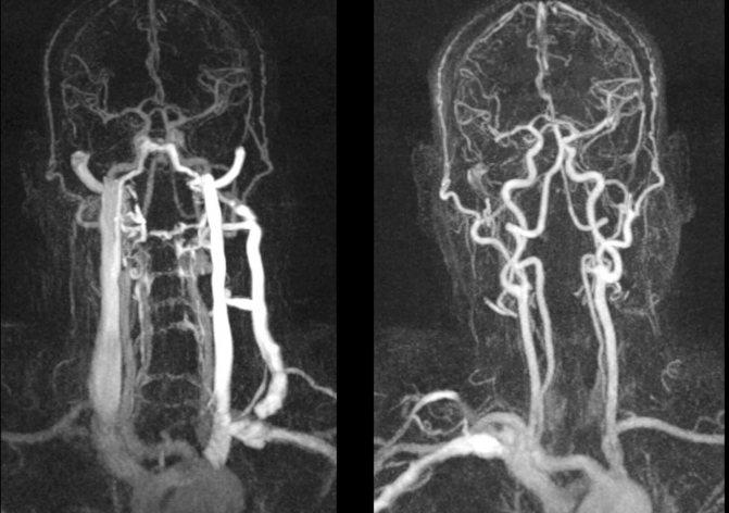 Что такое катэ кт в медицине и чем отличается от мрт?