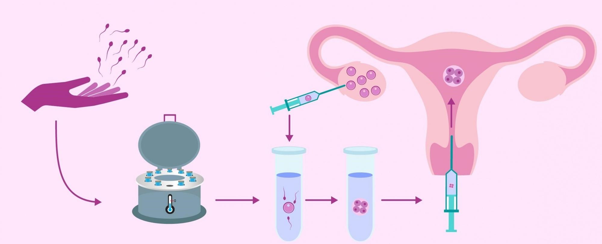 Что такое процедура икси: особенности и характеристика
