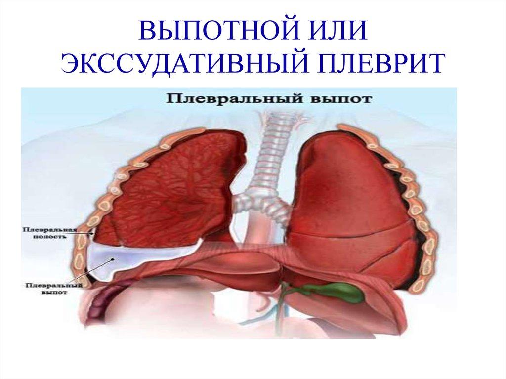 «скрытный» плеврит легких – начало тяжелого заболевания   медиков.нет «скрытный» плеврит легких – начало тяжелого заболевания   медиков.нет