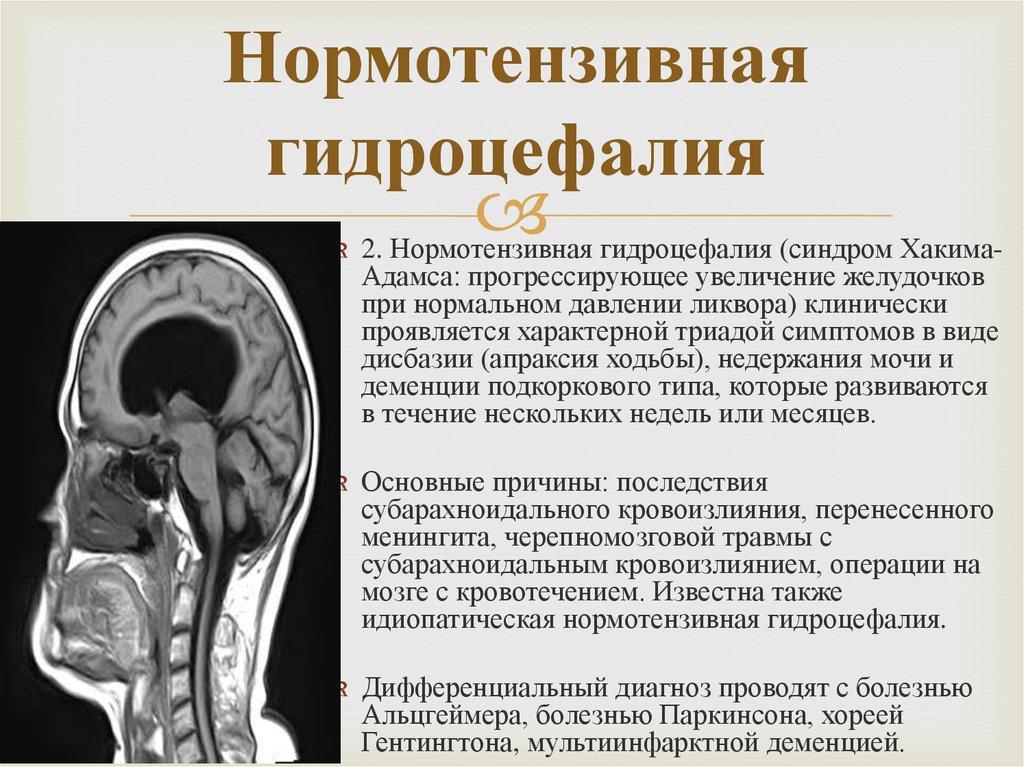 Наружная гидроцефалия головного мозга: что это такое, признаки, как лечить