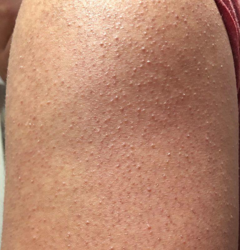 Гиперкератоз кожи лица: что это такое, симптомы, виды, лечение