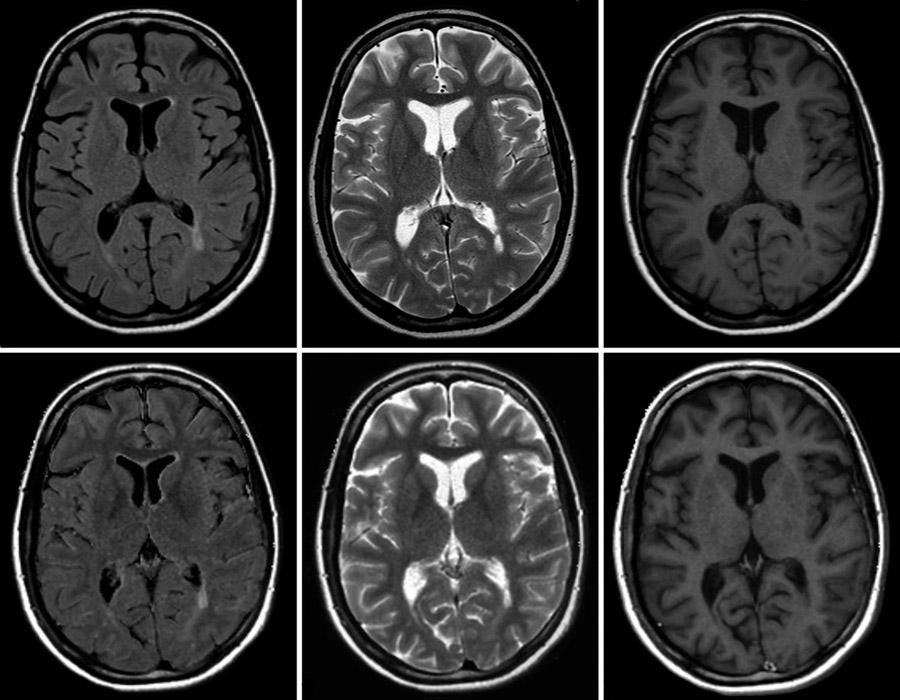 Противопоказания томографии головного мозга
