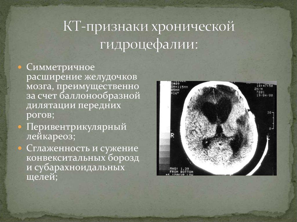 """Гидроцефалия (""""водянка мозга""""): как развивается, формы, проявления, лечение, последствия"""