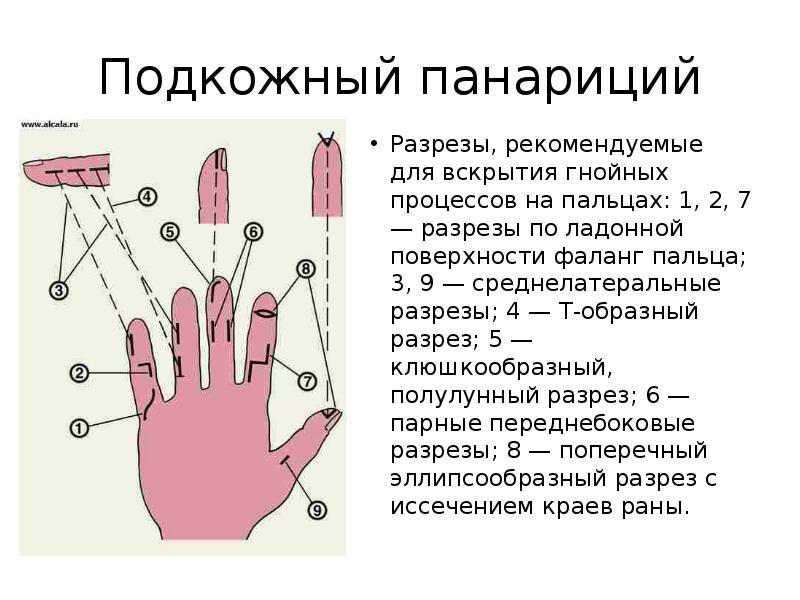 Быстрое лечение панариция в домашних условиях на руках и ногах