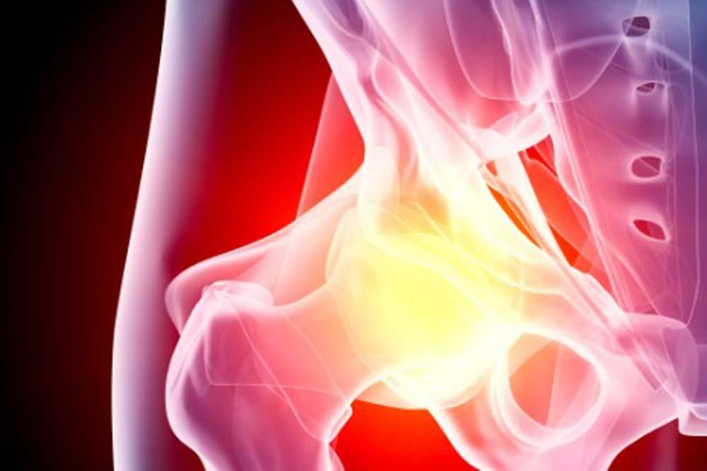 Этиология, симптоматика и методы лечения остеоартроза