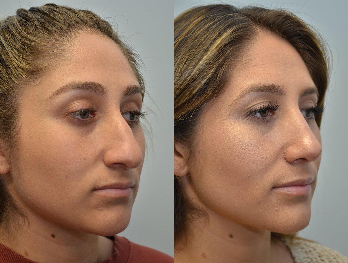Безоперационная ринопластика носа - отзывы и фото | ринопластика носа