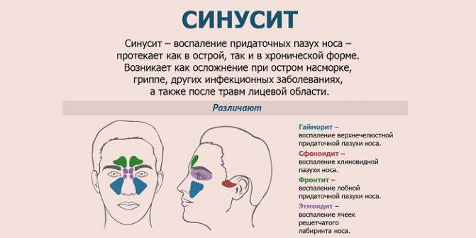 Симптомы и лечение синусита у взрослых