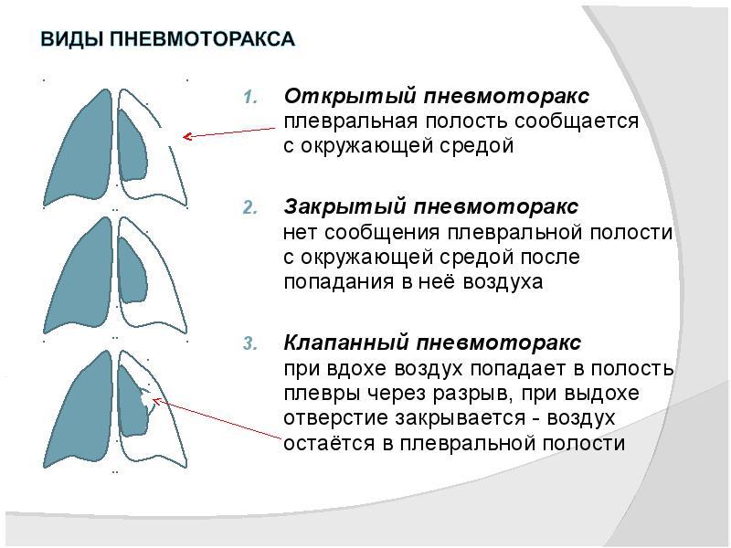 Базальный гидроторакс. гидроторакс легких: что это такое