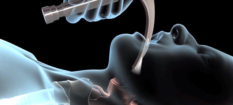 Интубация трахеи: показания, виды, техника проведения в условиях скорой помощи