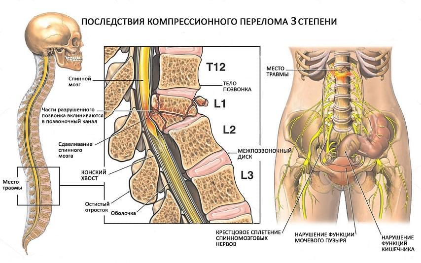 Компрессионный перелом грудного отдела позвоночника: лечение, причины, последствия