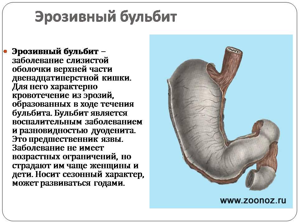 Бульбит: эрозивный, поверхностный, катаральный, очаговый | компетентно о здоровье на ilive