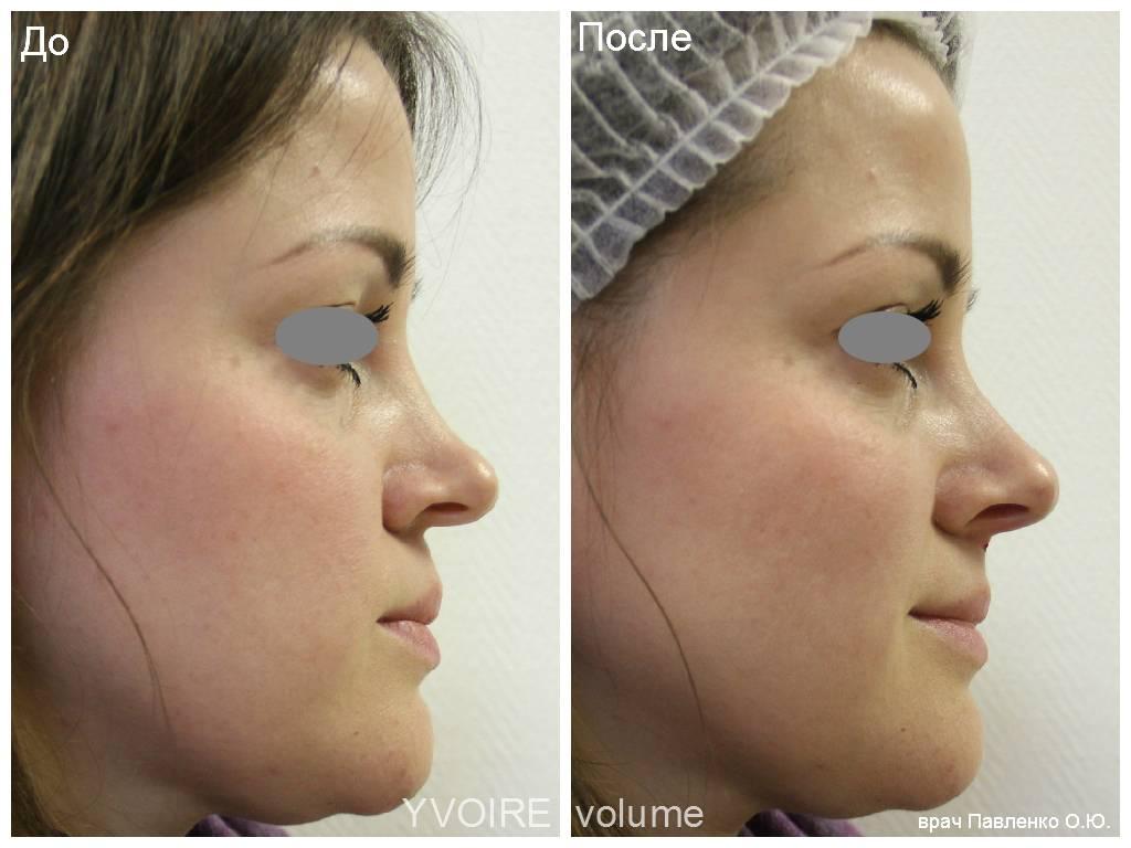 Ринопластика носа москва | сколько стоит, цена | ринопластика носа
