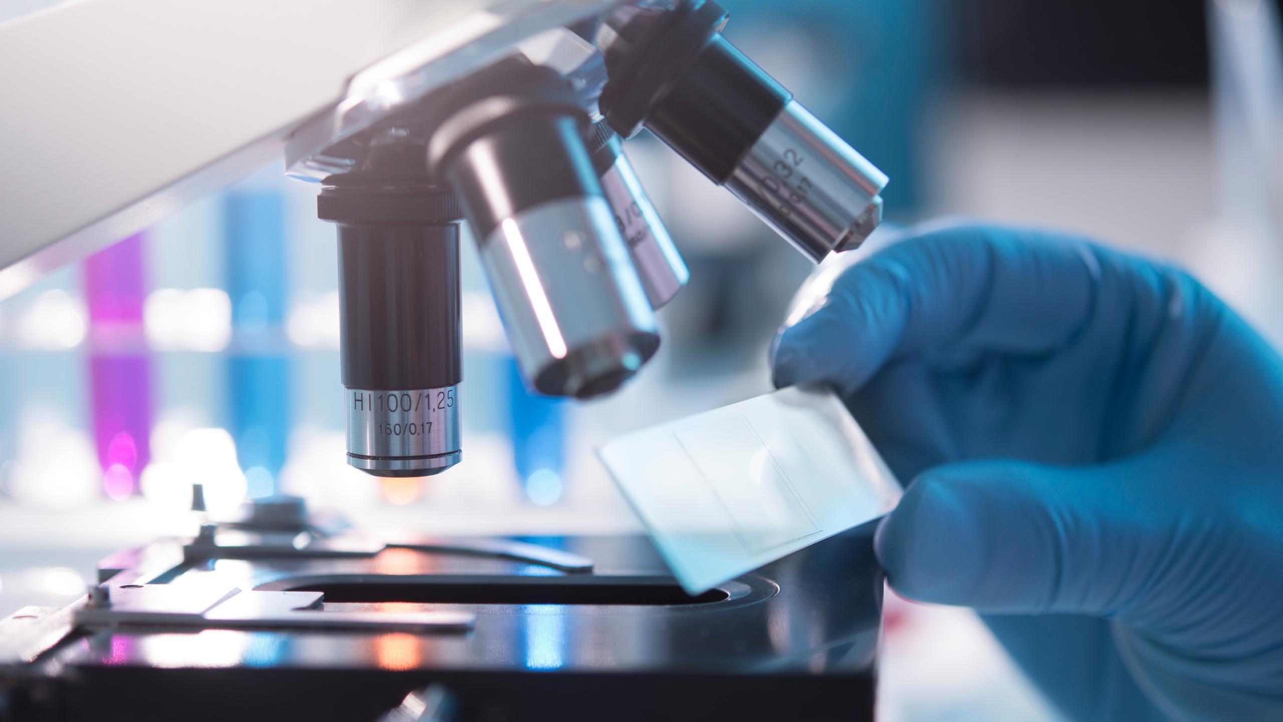 Иммуногистохимия (игх-анализ) рака молочной железы: что показывает, расшифровка результатов. как проводится игх анализ