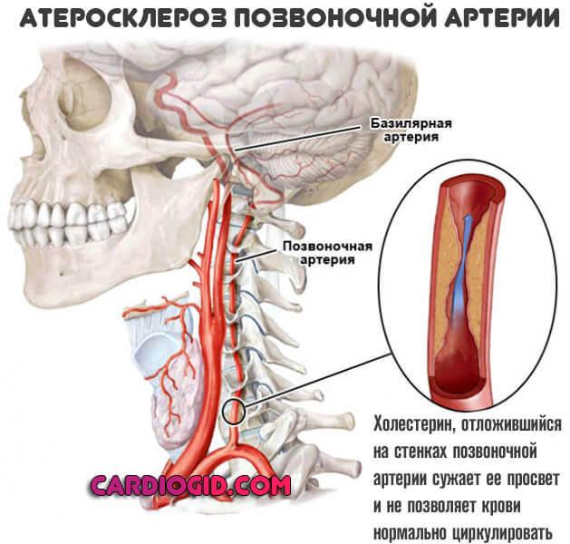 Что такое церебральный атеросклероз сосудов головного мозга и как его лечить?
