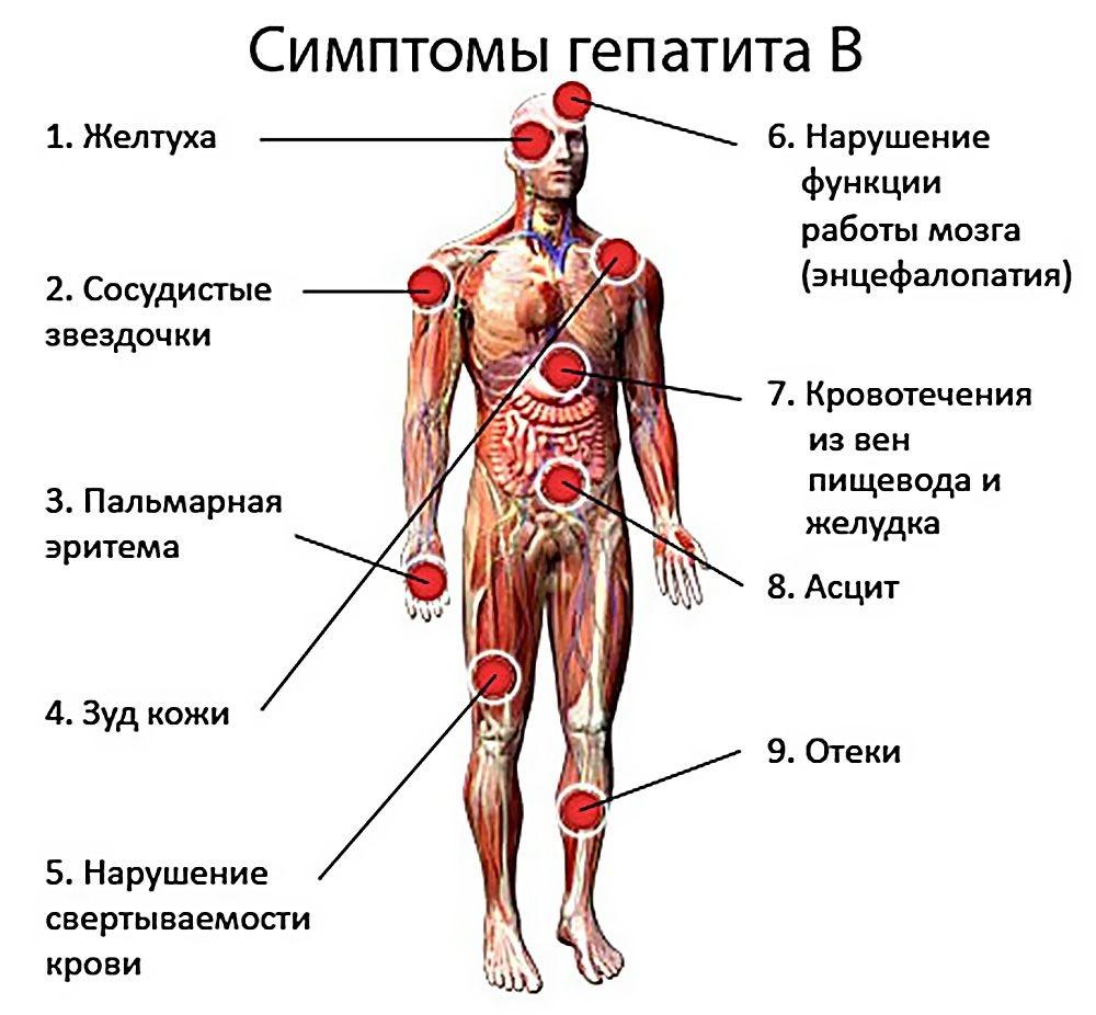 Гепатит с – причины, первые симптомы и лечение