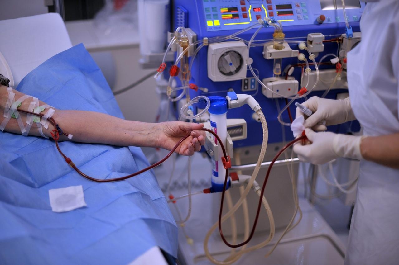 Гемодиализ: что это такое, показания и противопоказания, диета, виды, аппарат для процедуры, осложнения, сколько живут, фото, отзывы