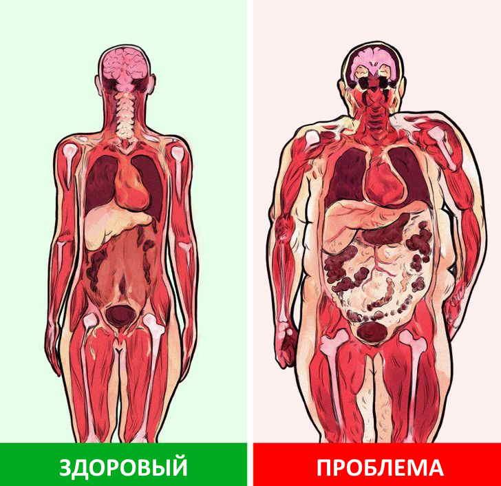 Метаболический синдром: смертельный квартет для тех, кому 50 лет и больше — что это простым языком