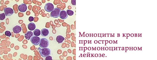 О чем это говорит, если у взрослого понижены моноциты