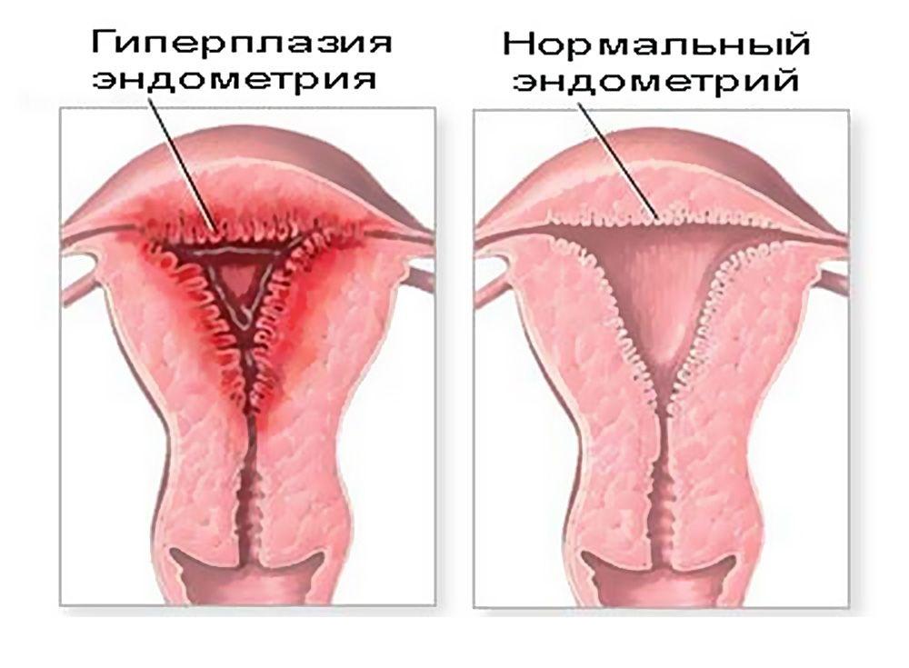 Тонкий (маленький) эндометрий - причины и лечение патологии