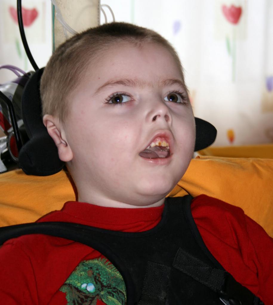 Синдром веста у детей | клиника шнайдер