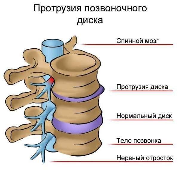 Протрузия дисков позвоночника: причины, симптомы и лечение