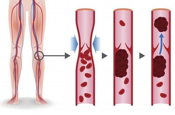 Тромбофлебит. причины, симптомы и признаки, диагностика, лечение и профилактика. :: polismed.com