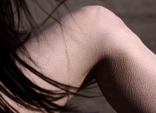 Водянистые пузырьки (прыщи) на пальцах рук. причины, симптомы, лечение