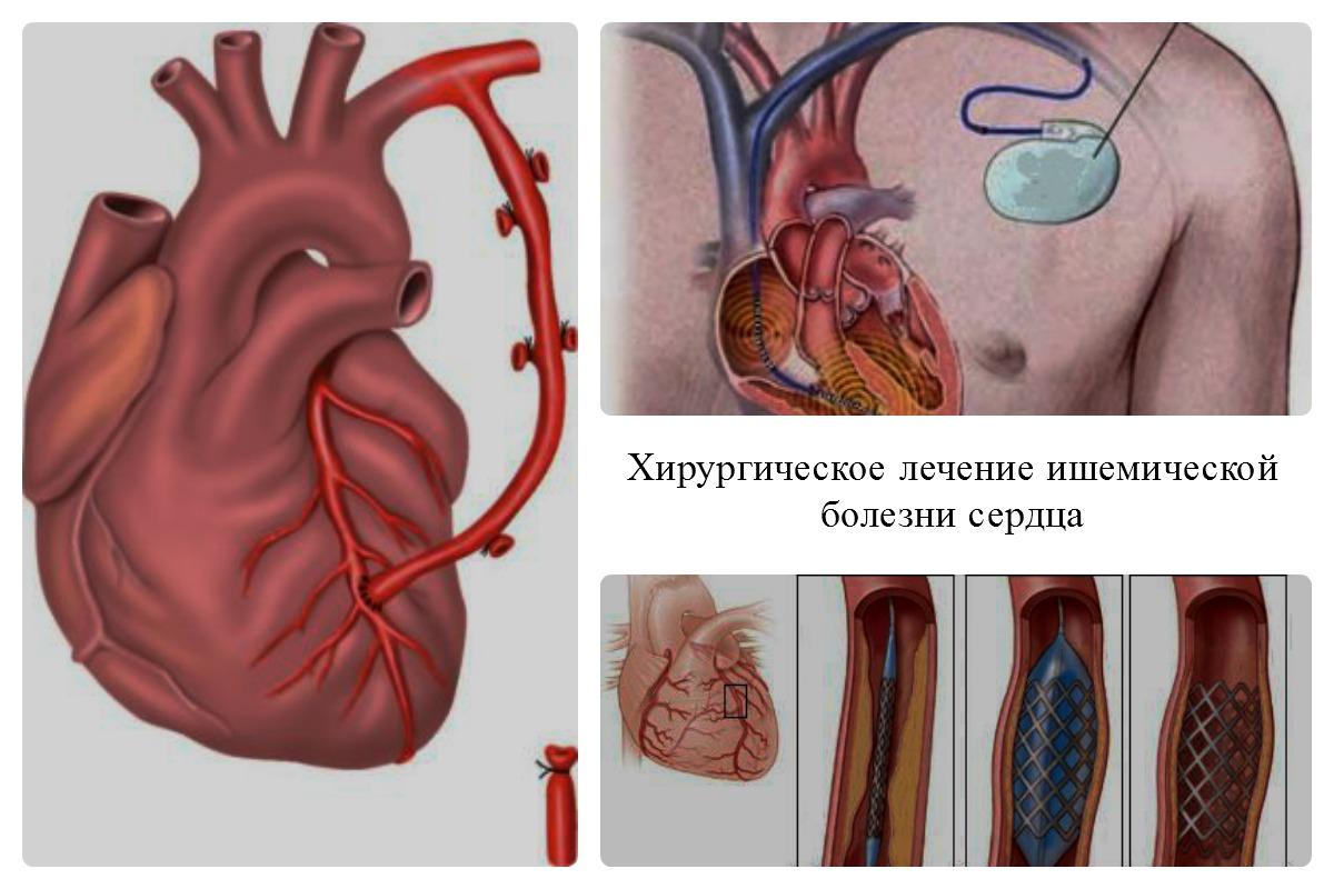 Ишемическая болезнь сердца: причины, симптомы и лечение в статье кардиолога колесниченко и. в.