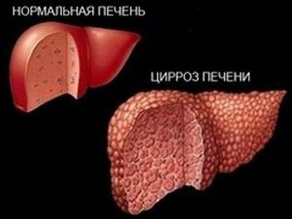 Первые признаки цирроза печени: список симптомов
