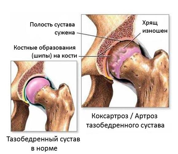 Как лечить коксартроз (остеартроз) тазобедренного сустава? эффективные методы