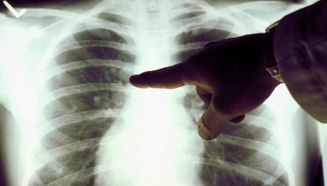 Туберкулома легких: причины, симптомы, лечение, прогноз