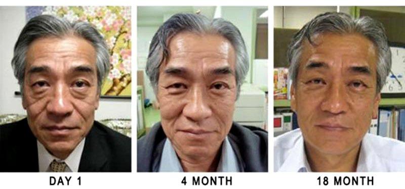 Клеточная терапия стволовыми клетками – стволовые клетки в медицине и косметологии