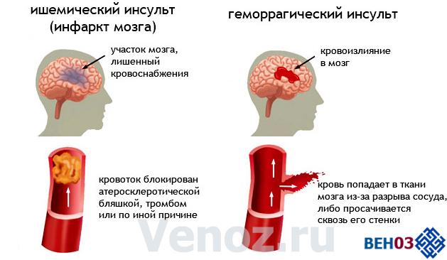Инфаркт и инсульт головного мозга: что это такое, в чем разница