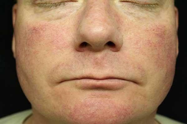 Розацеа: симптомы, причины, современные методы лечения