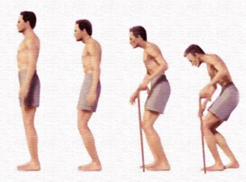 Болезнь бехтерева: стадии, формы, у мужчин, женщин