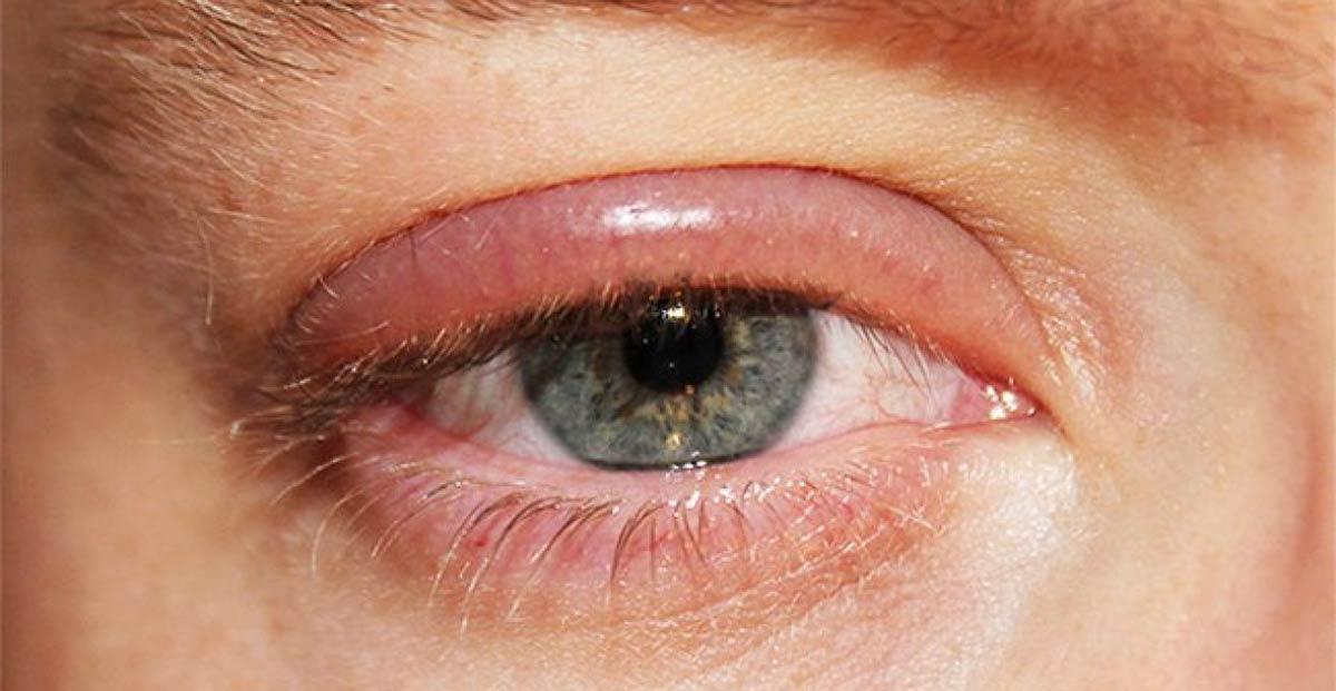 Что говорят приметы если слезится левый или правый глаз, к чему появляются горячие слезы