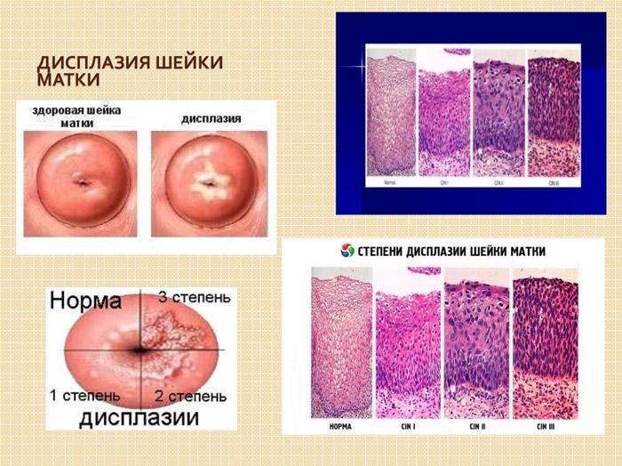 Планирование беременности с дисплазией шейки матки 2 степени